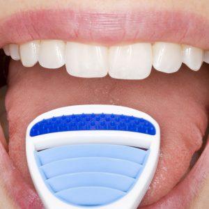 Надо ли чистить язык от налета?