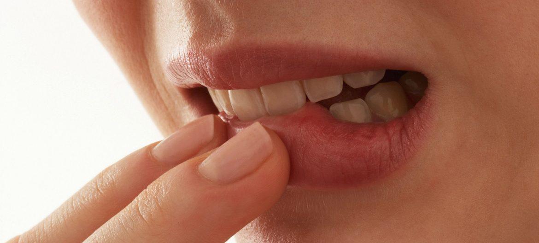 Запах изо рта у человека
