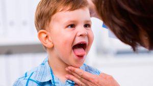 Желтый налет на языке ребенка